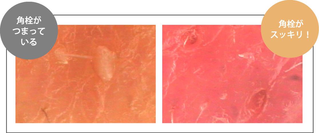 角栓のイメージ